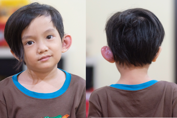 Anak Musisi Anji, Saga, Terkena Sinus Preauricular: read it and you will know all about Anak Musisi Anji, Saga, Terkena Sinus Preauricular for moms, the most interesting about Anak Musisi Anji, Saga, Terkena Sinus Preauricular on a site motherandbaby.co.id
